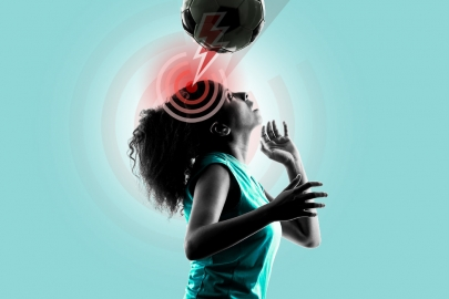6 Myths Unmasked: Don't Be Blindsided by Concussion